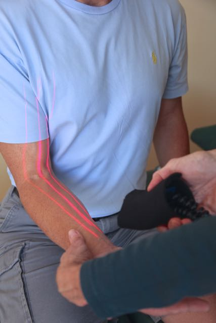 Image of laser therapy to the upper extremity.