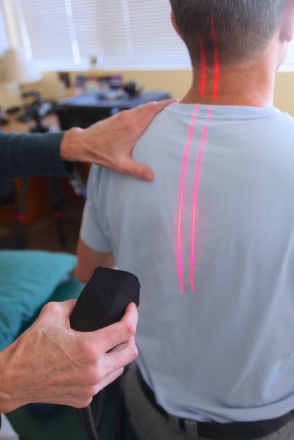 Image of the application of laser therapy to the spine.